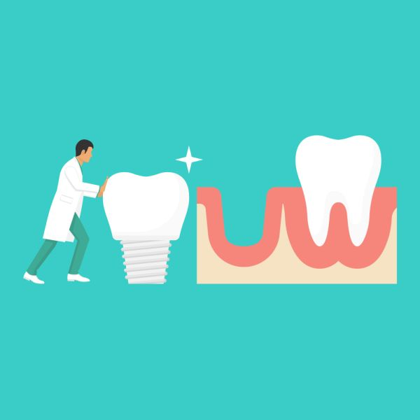 Reasons To Visit A Dental Implants Professional